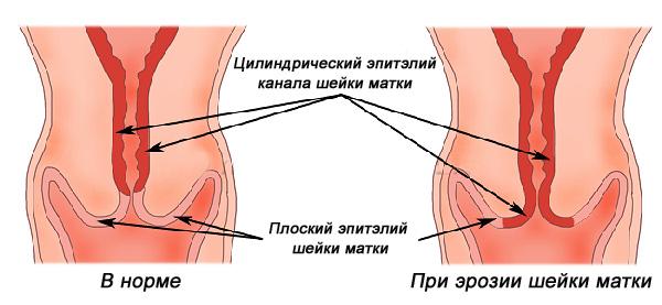 Смещение цилиндрического эпителия на влагалищную часть шейки матки при эрозии