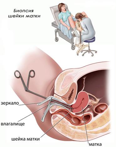 Биопсия эрозированного участка обязательна при обнаружении атипичных клеток