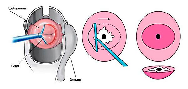 Петлевая биопсия