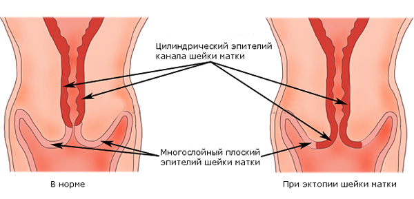 Что такое псевдоэрозия шейки матки 15