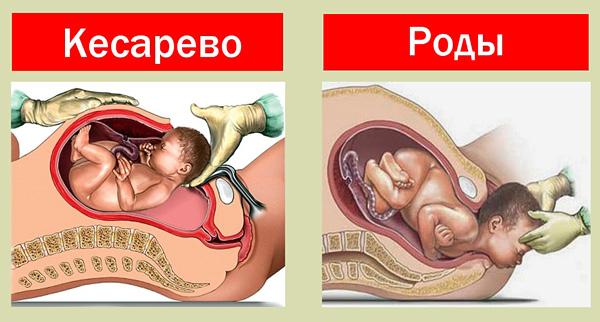 Кесарево сечение при рубцовой деформации шейки матки