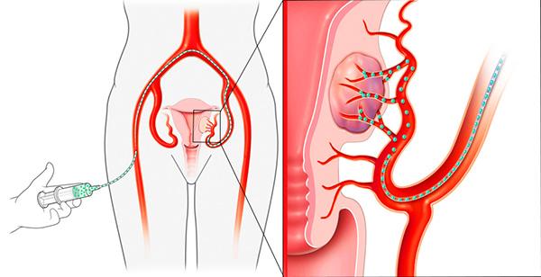 Эма маточных артерий 34