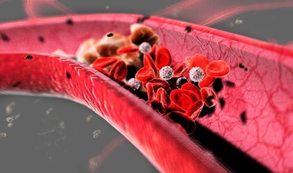 Эмболы в артерии