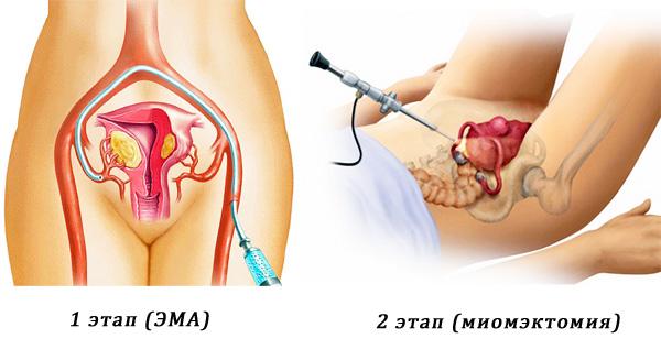 Два этапа удаления миомы