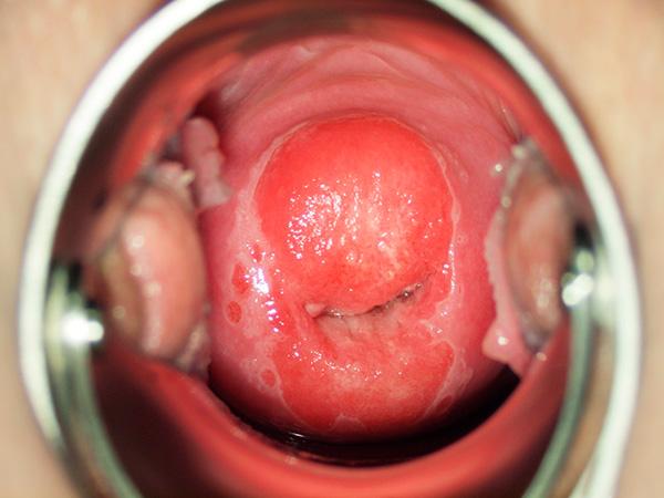 болезни матки: эрозия шейки