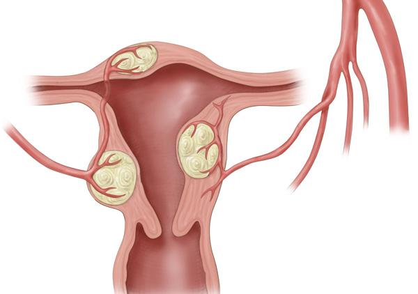 Интерстициальная миома располагается в мышечном слое матки, причем тактика ее лечения напрямую зависит от размера и расположения.