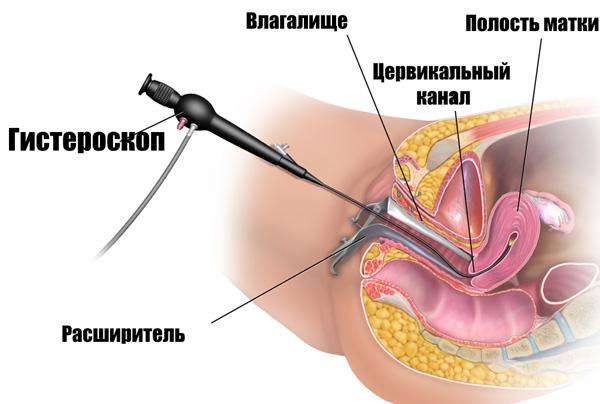 Полипы матки. Причины симптомы и признаки лечение и профилактика патологии