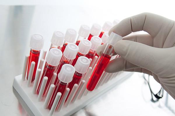 Посмотрим, как проводится диагностика миомы и в каких случаях целесообразно сдавать анализы на гормоны...