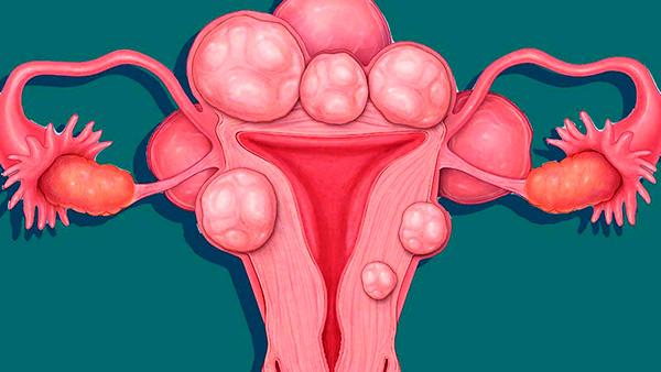 Рассматриваем основные аспекты появления, диагностирования и лечения миомы матки...