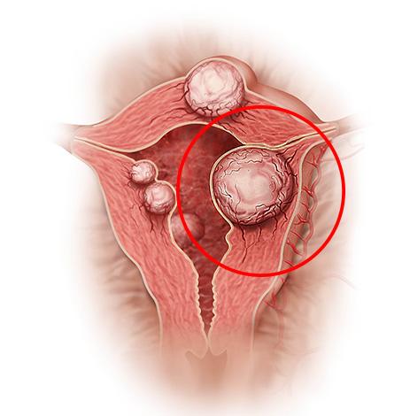 Миоматозный узел перекрывает доступ сперматозоидам