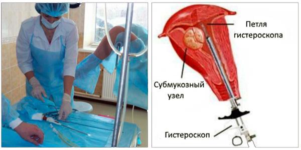 Нарушения мезентериального кровообращения