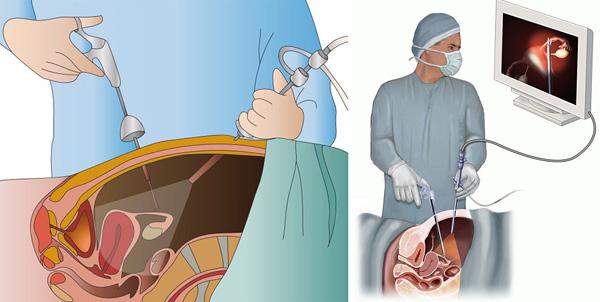 Рассматриваем особенности проведения лапороскопической операции по удалению миомы матки...