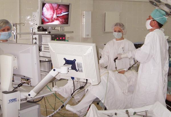 Лапароскопический метод удаления миомы