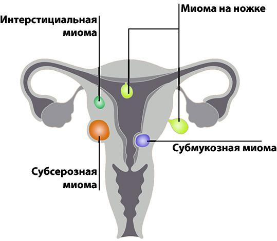 Топографическая классификация миомы