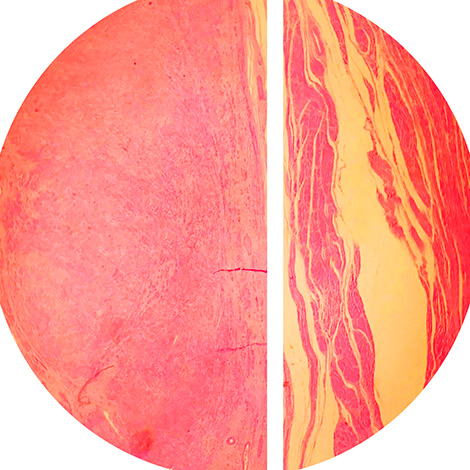 Гистология миомы