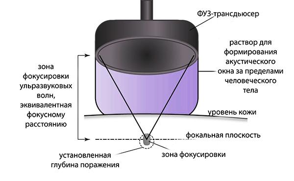 Принцип ФУЗ-абляции