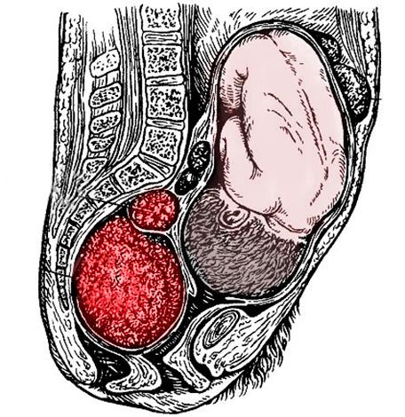 Беременность и миома