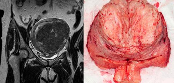 МРТ миомы и макропрепарат