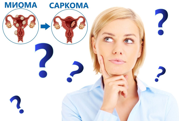Посмотрим, возможно ли перерождение миомы в злокачественную опухоль...