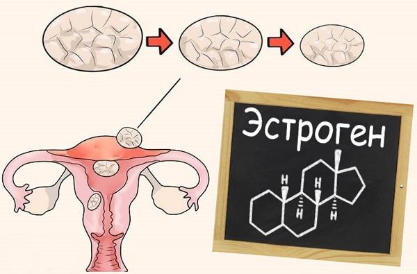 Миома и эстрогены