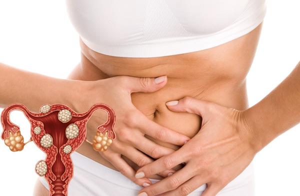 Разбираемся в основных аспектах миоматоза и тактике его лечения...