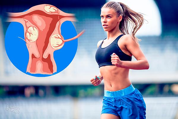Разбираемся, какие упражнения и виды спорта разрешены при миоме...
