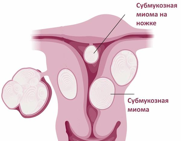 Разбираемся, почему субмукозная миома является довольно-таки опасной формой патологии...