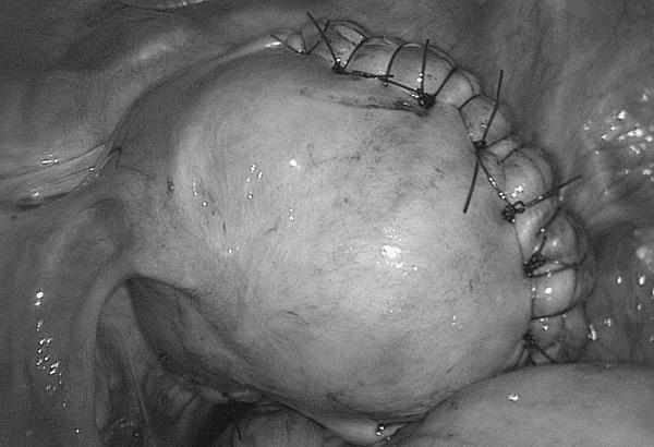 Формирование рубца на матке после операции