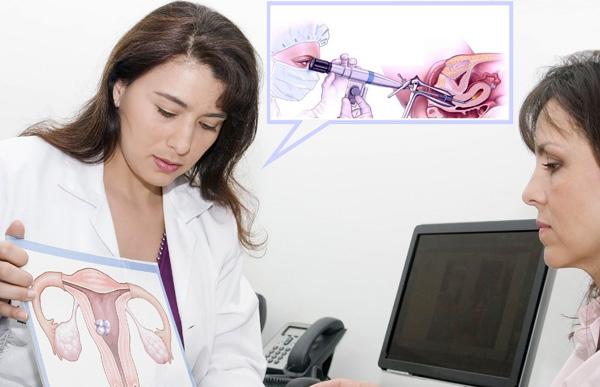 Разбираемся в особенностях проведения процедуры гистерорезектоскопии миомы...