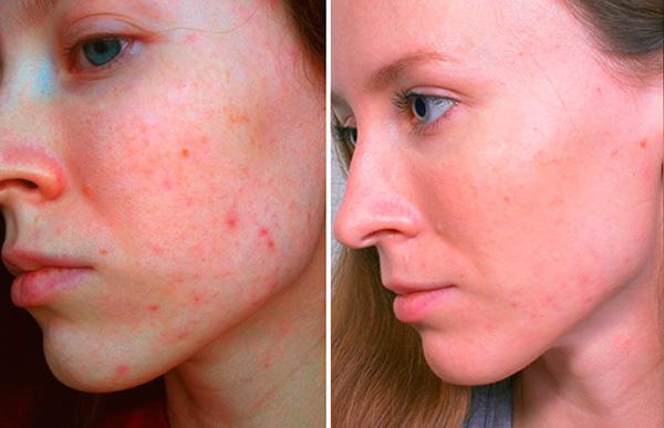 Влияние гормональных контрацептивов на состояние кожи