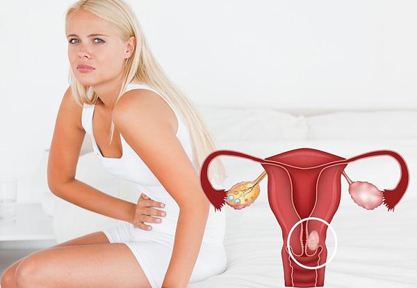 Посмотрим, какими симптомами проявляет себя шеечная миома и отличаются ли способы ее лечения от терапии других видов опухолей...