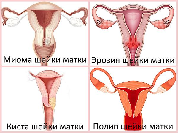 Болезни шейки матки