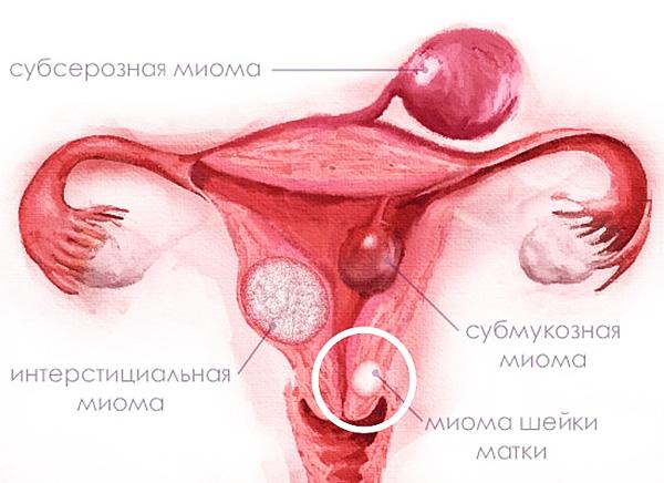 Виды доброкачественных опухолей матки