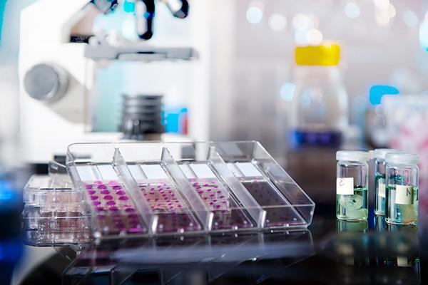 Гистологическое исследование позволяет установить, не протекают ли онкологические процессы в новообразовании