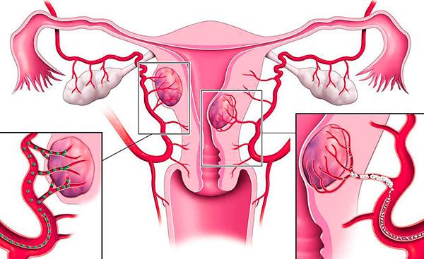 Эмболизация маточных артерий - в сосуды, питающие миому, вводятся специальные эмболы