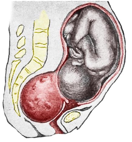 Беременность при субсерозном миоматозном узле