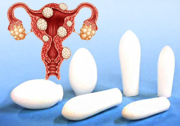 Выясняем, какие свечи иногда применяются в лечении миомы и как они действуют...