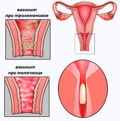 Действие вагинальных свечей