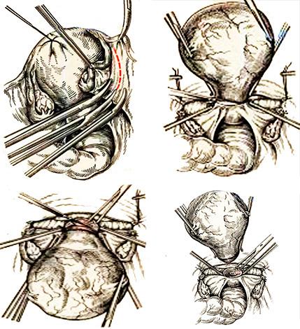 Этапы операции по ампутации матки