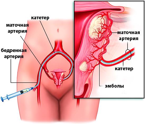 Схема эмболизации маточных артерий