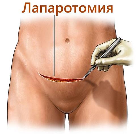 Разрез при проведении миомэктомии лапаротомическим способом