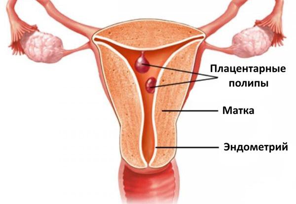 Плацентарные полипы как следствие аборта