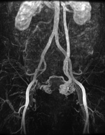 Тромбофлебит тазовых вен на МРТ