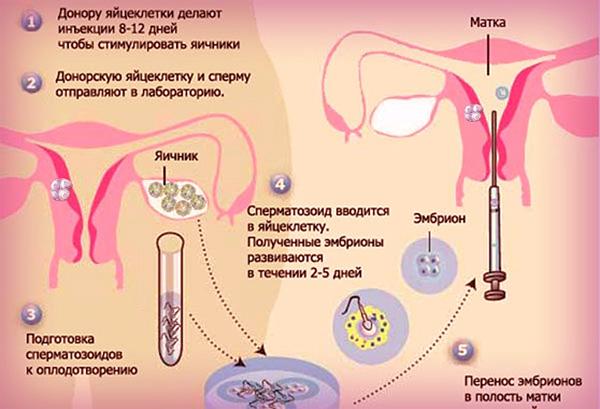 Этапы проведения процедуры экстракорпорального оплодотворения