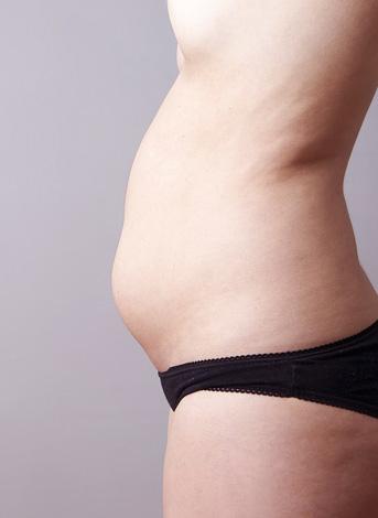 Размер живота с ростом фибромиомы увеличивается