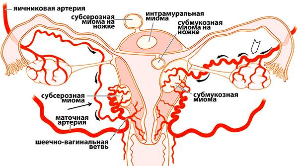 Усиление кровотока в малом тазу способствует росту миомы