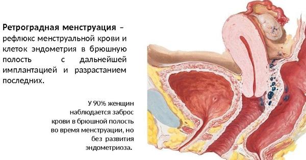 Ретроградная менструация может стать причиной эндометриоза