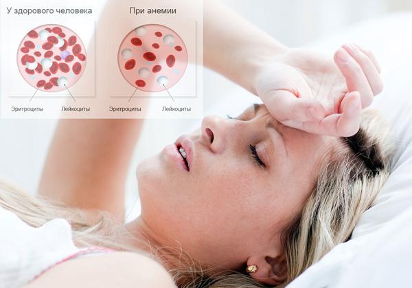 Анемия часто возникает при патологических маточных кровотечениях