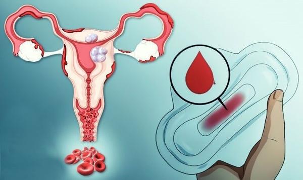 Маточное кровотечение как симптом наличия миоматозных узлов