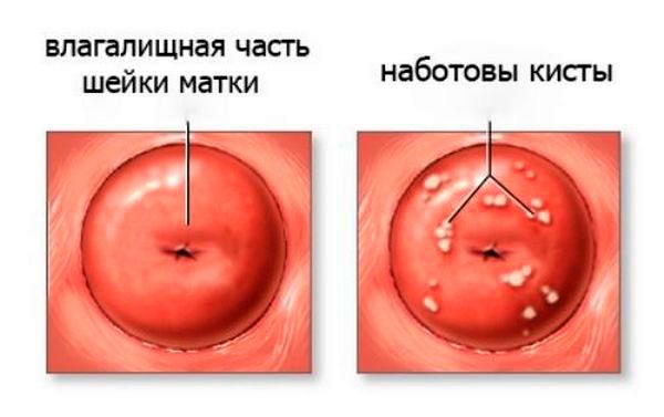 Наботовы кисты на шейке матки выявляются при кольпоскопии
